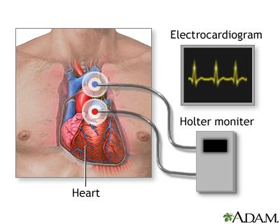 Holter ECG Monitoring Market to Witness Robust Expansion by 2025