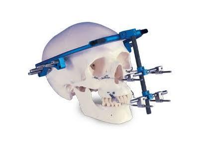 Distraction Osteogenesis Devices Market segmentation, Growth