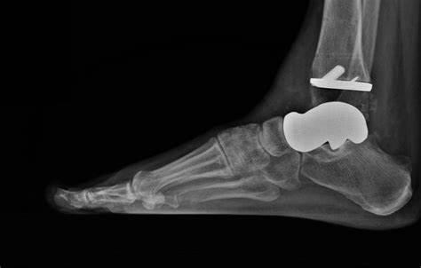 Additive Orthopedics Market to Witness Robust Expansion by 2024