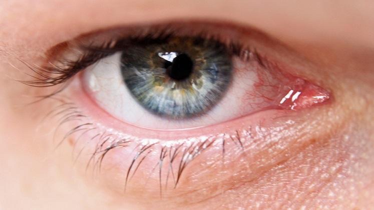 Marché des dispositifs de drainage du glaucome: atteindre de nouveaux sommets entre