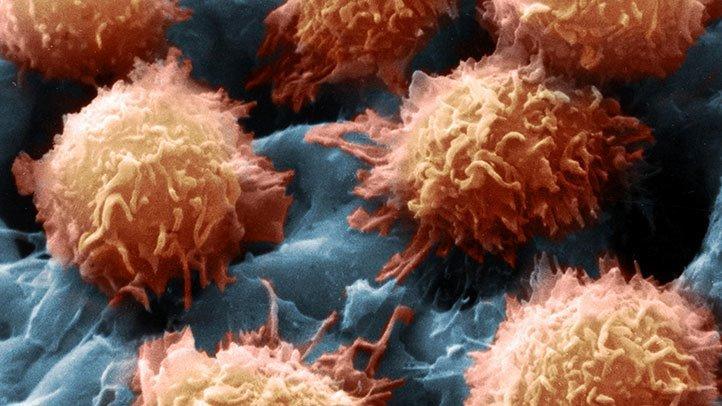 Global Hairy Cell Leukemia Drug Market