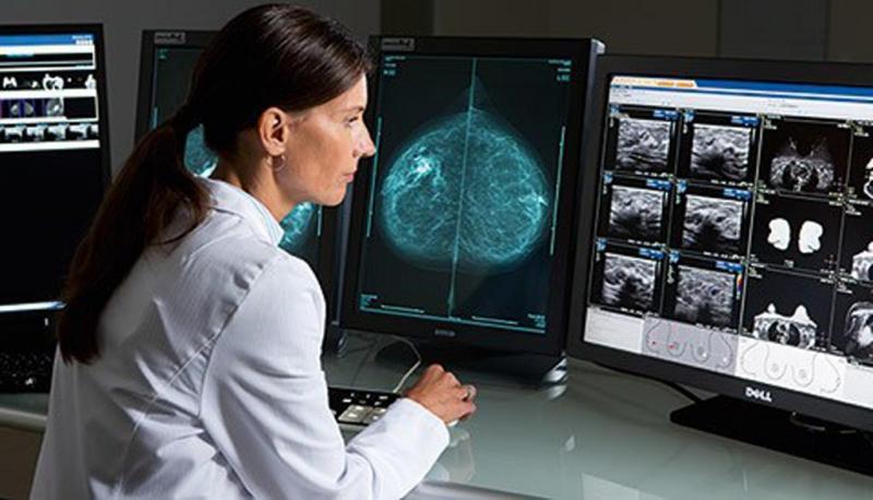 Global Medical Imaging Workstations Market