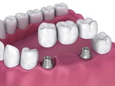 Marché des ponts dentaires