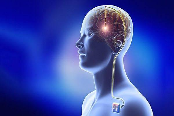 Deep Brain Stimulation Devices Market