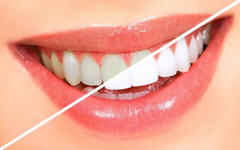 Teeth Whitening Market