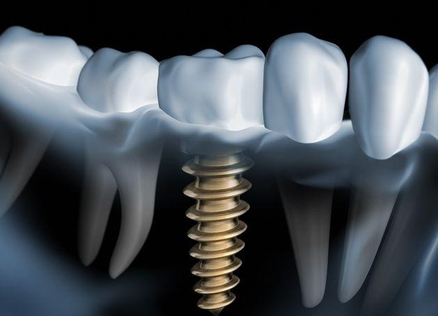 Osseointegration Implants Market