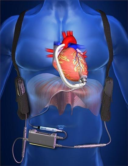 Congestive Heart Failure (CHF) Treatment Devices Market