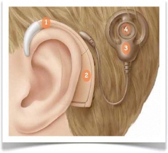 Hearing Implants Market