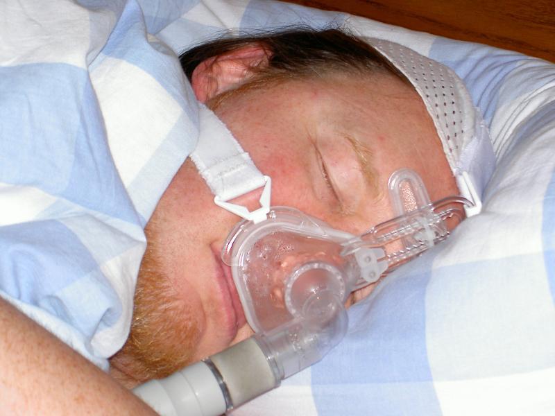 Sleep apnea diagnostics and therapeutics Market