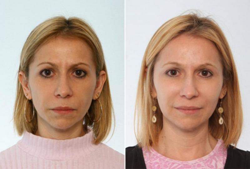 Marché de transfert de graisse faciale