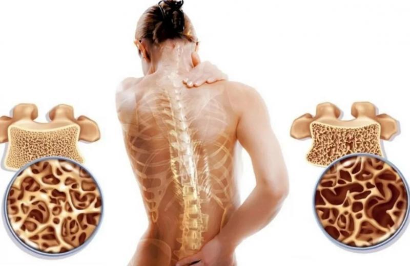 Le marché des médicaments contre l'ostéoporose connaîtra une croissance exceptionnelle