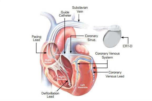 Cardiac Resynchronization Therapy Market