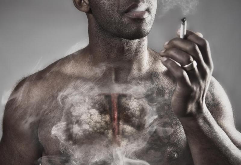 Global Emphysema Drug Market