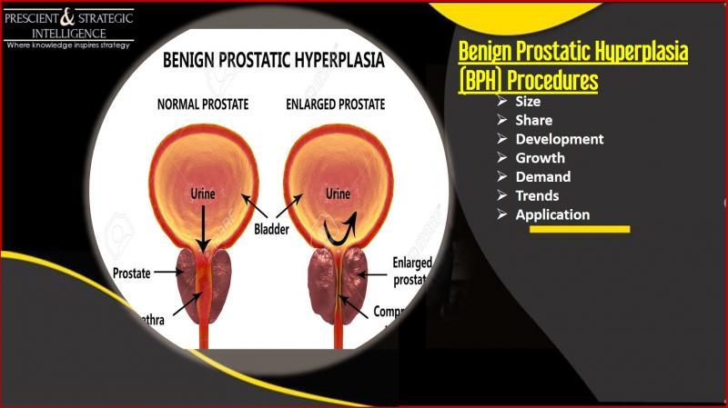 US Benign Prostatic Hyperplasia (BPH) Procedures Market