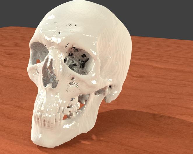 Medical Skull CT Market