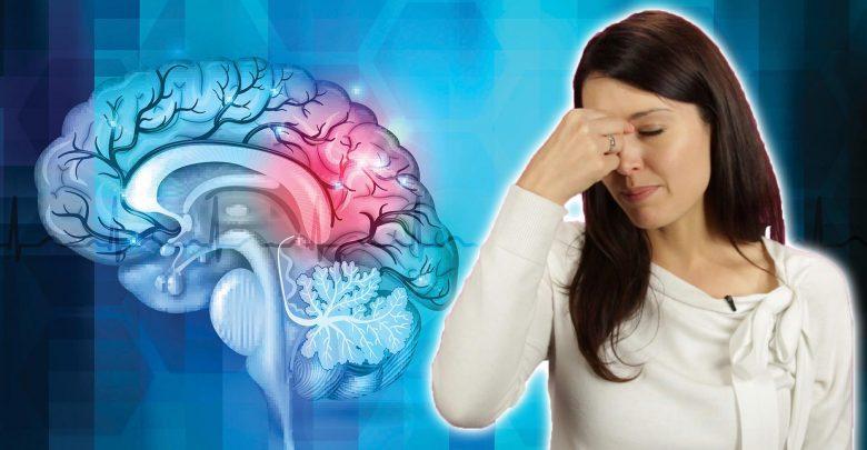 Global Migraine With Brainstem Aura Drugs Market 2020