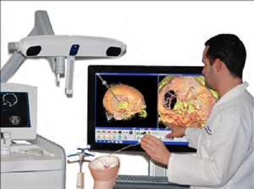 Global Surgical Navigation Software Market