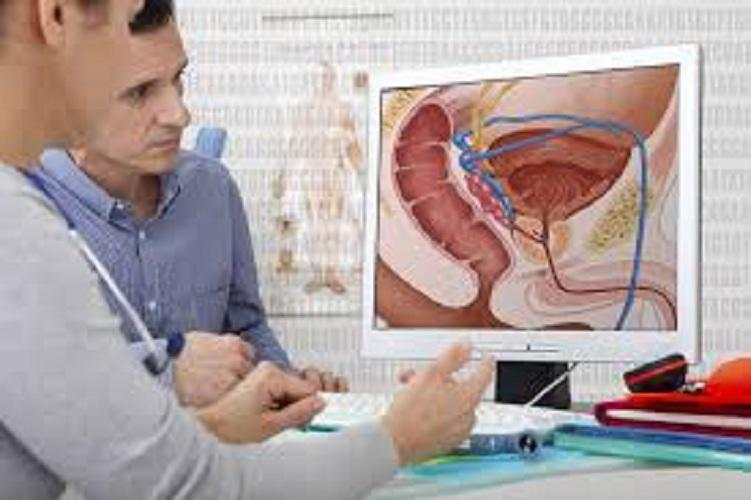 Prostate Cancer Market