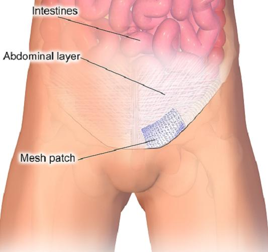 Hernia Mesh Devices market