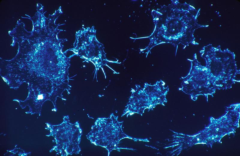 Noninvasive Cancer Diagnostics and Technologies Market