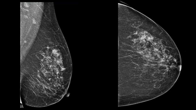 Breast Imaging Equipment Market