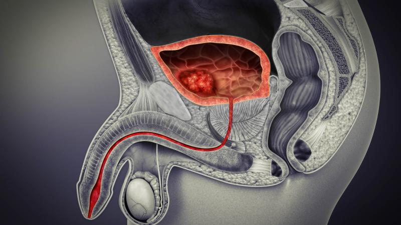 Urinary Tract Cancer Market