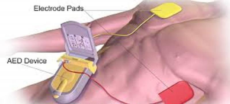 Automated External Defibrillators Market