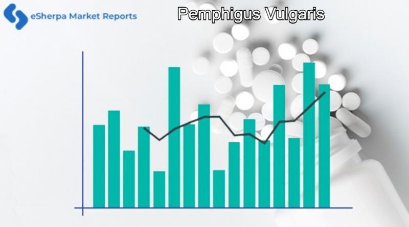 Pemphigus Vulgaris