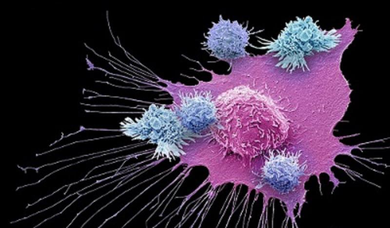 Cancer Immunotherapy Market 2027 Global Analysis and Forecasts