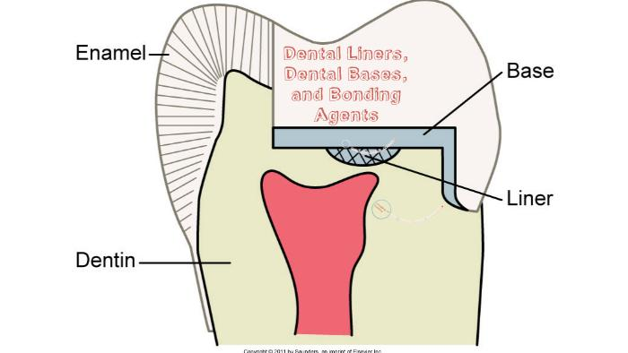 Dental Liners and Bases