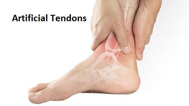 Artificial Tendons