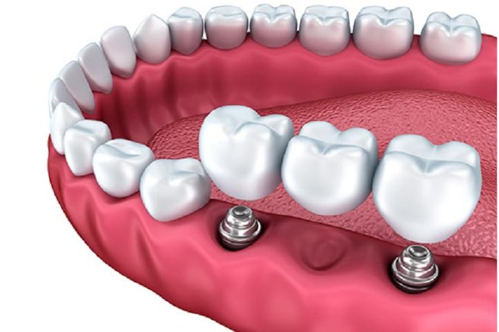 Dental Implants and Prosthetics Market to growing at CAGR of 8.8%