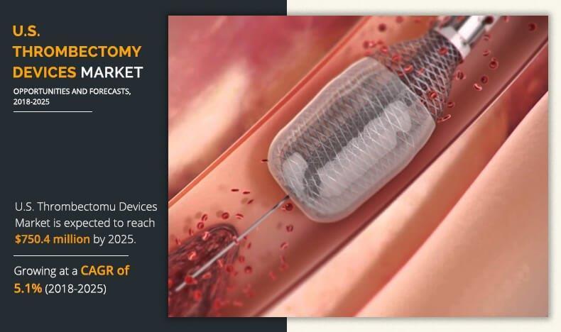 U.S. Thrombectomy Devices Market