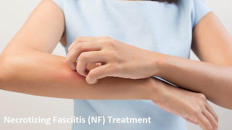 Necrotizing Fasciitis (NF) Treatment Market Stance Forecasts