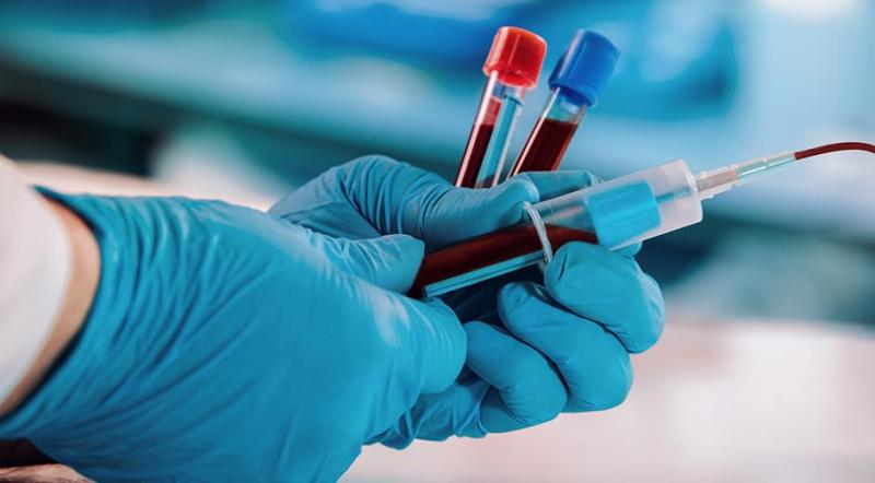 Blood Collection Market is Thriving with Rising Latest Trends