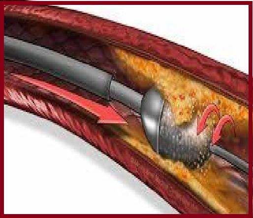 Coronary Atherectomy Devices Market to Witness Huge Growth