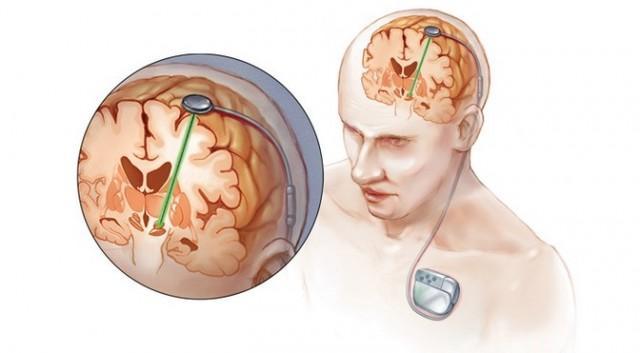 Marché mondial de stimulation cérébrale profonde