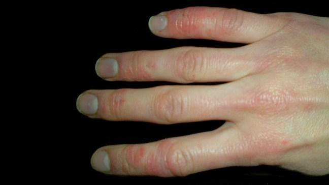 Global Scleroderma (Systemic Sclerosis) Treatment Market- Industry Trends and Forecast to 2026