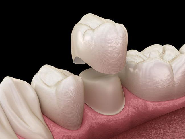 Dental Porcelain Market Size, Share, Development by 2025