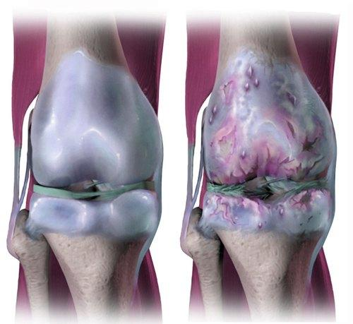 Musculoskeletal Diseases Treatment Market: Rising Prevalence