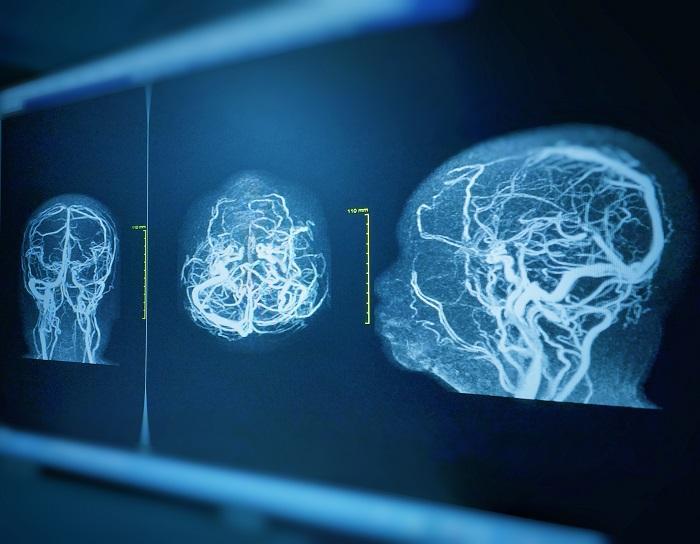 Brain Aneurysm Treatment. Brain Aneurysm