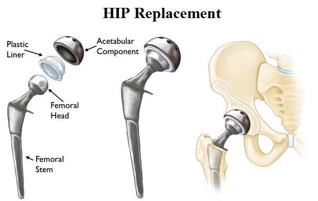 HIP Replacement Market