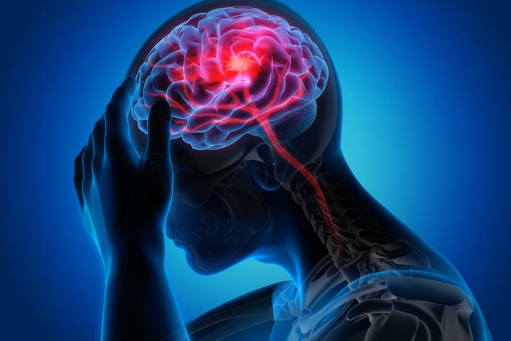Cerebral Thrombectomy Systems Market in COVID-19: