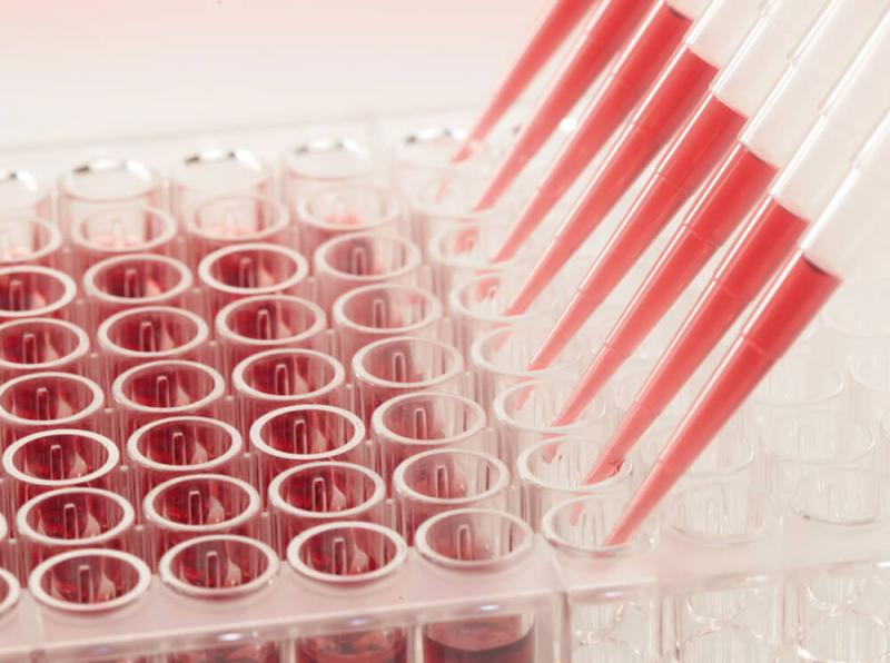 Pipetting of an ELISA plate Copyright CANDOR Bioscience GmbH