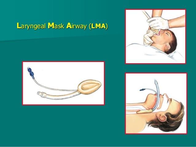 Anesthesia Laryngeal Mask Airway
