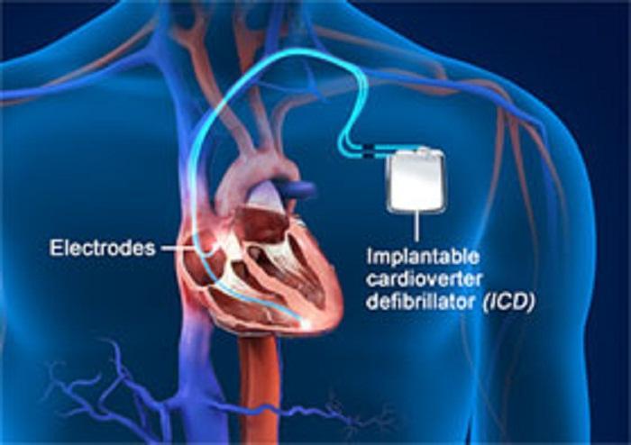 Implantable Cardioverter Defibrillators Market To 2027: Size,