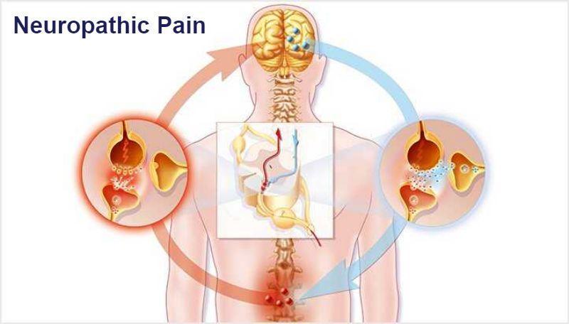 Neuropathic Pain Market