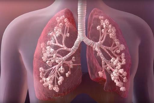 Cystic Fibrosis Therapeutics Market