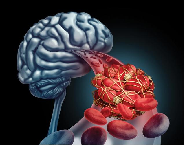 Global Stroke Diagnostics and Therapeutics Market 2020 Outlook, Current and  Future Industry Landscape Analysis 2025 – Bulletin Line
