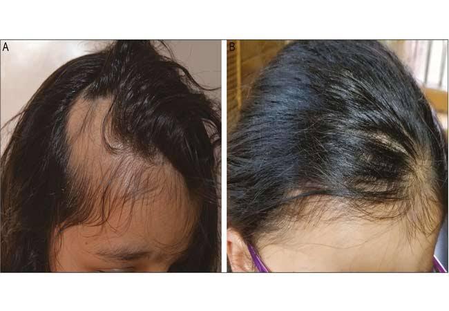 Asia Pacific Alopecia Treatment Market